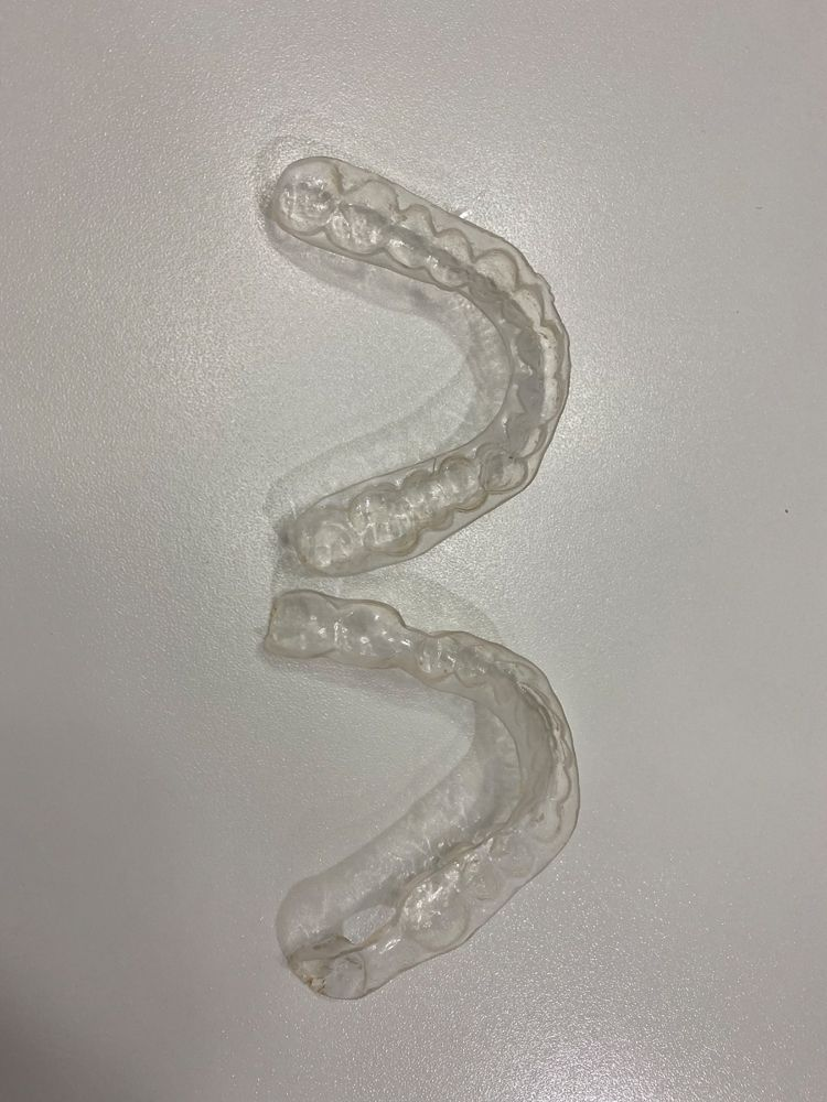 After being rinsed and dried, the dental appliance is now cleansed and sanitized (Figure 6).