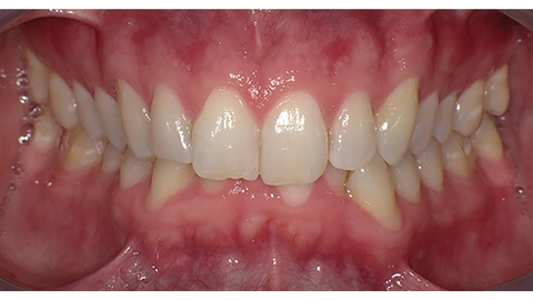 How to do more with less in clear aligner therapy