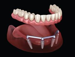 The Pros and Cons of 5 Implant Attachment Styles