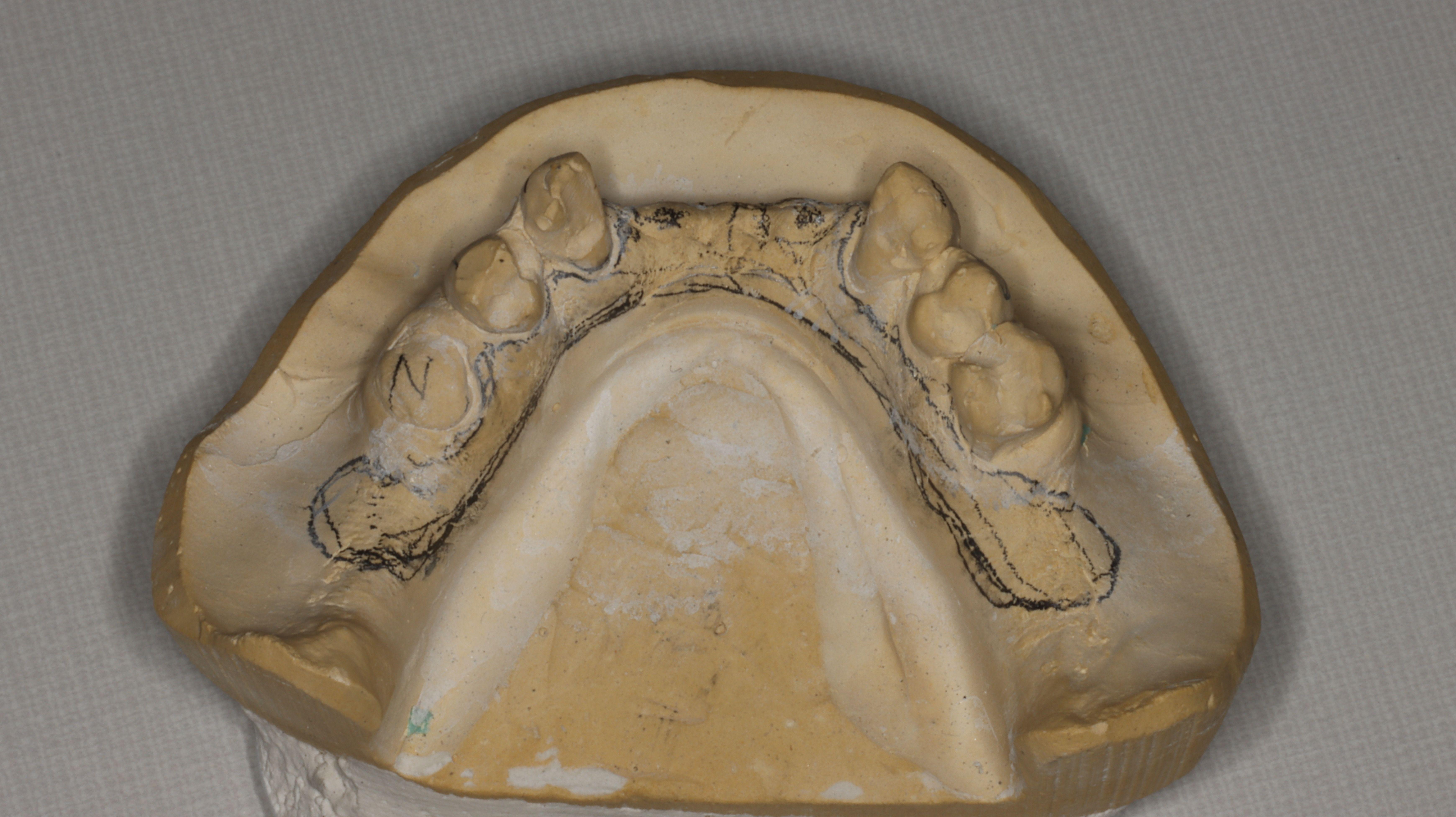 Figure 12. Stone cast and design for cast metal reinforcement incorporated into mandibular overdenture.