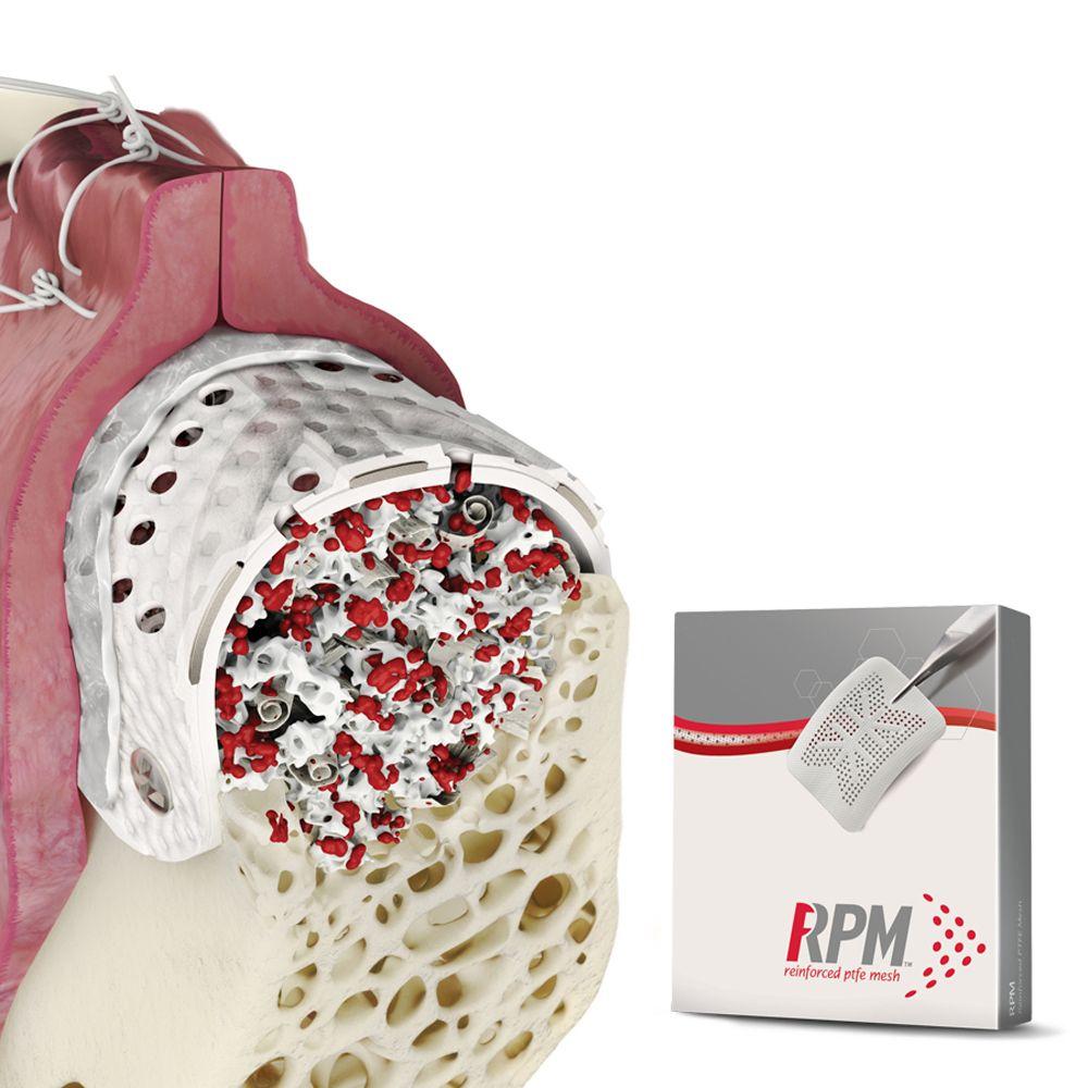 RPM - Reinforced PTFE Mesh