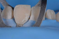 How to Achieve Esthetic Outcomes by Using Single-Shade Composites