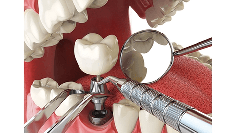 6 mistakes dentists make placing implants