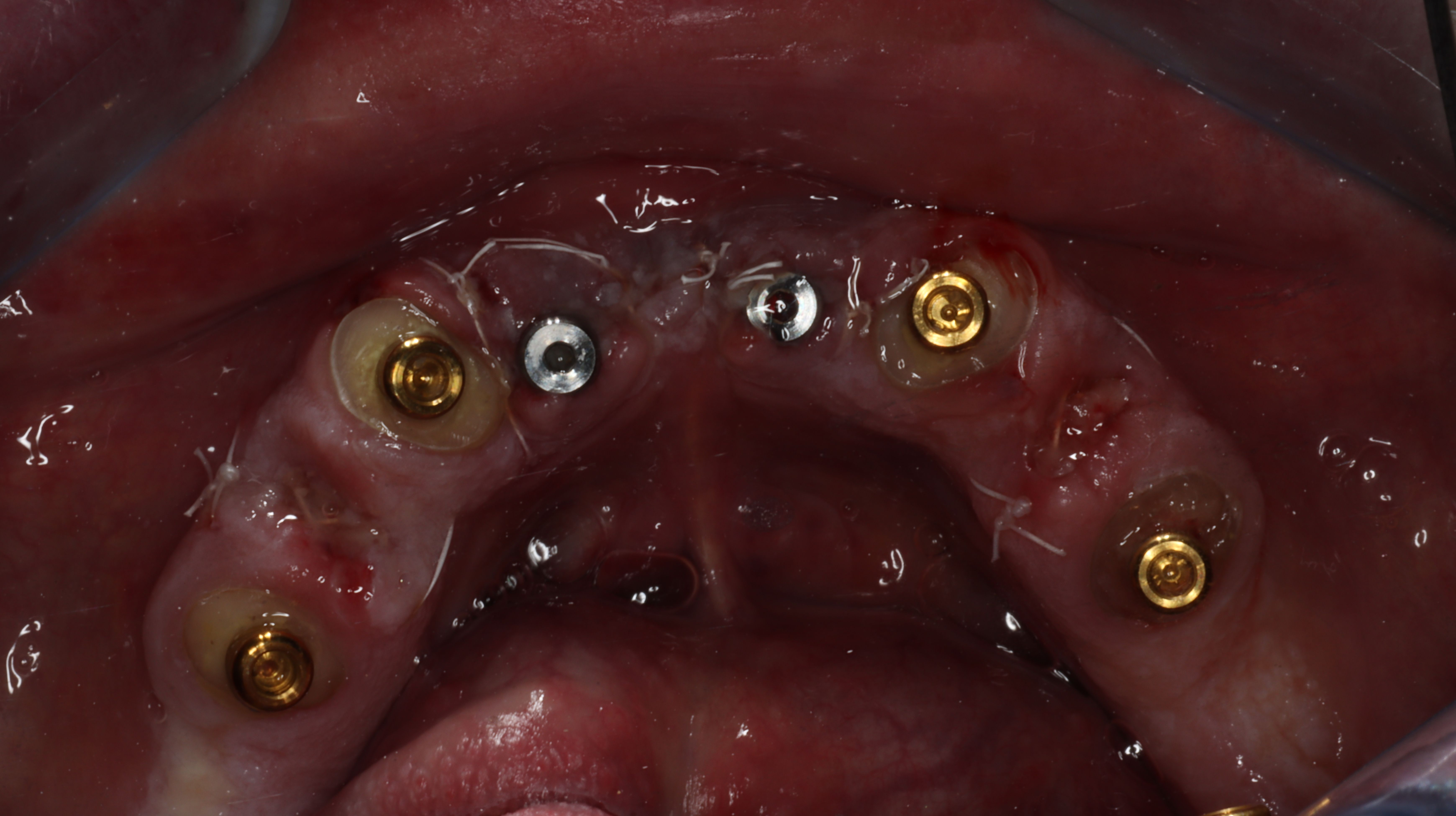Figure 21. Surgical appointment, extractions of first bicuspids with dentin grind-PRP/PRF bone grafts, locator root form abutments seated into endo teeth and Lodi dental implants placed into anterior symphysis (Zest Dental Solutions).