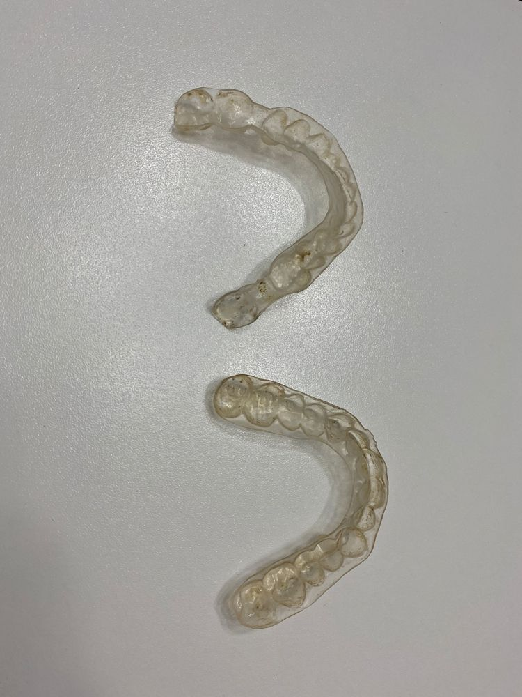 PT's Clear Aligners (Figure 1)