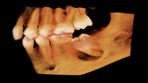 How CBCT benefits both you and your patients
