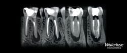 BIOLASE Announces Collaboration with Einstein Healthcare Network's Residency in Endodontics