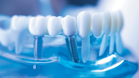 Implant surgery and surgical guides: How hard can it be?