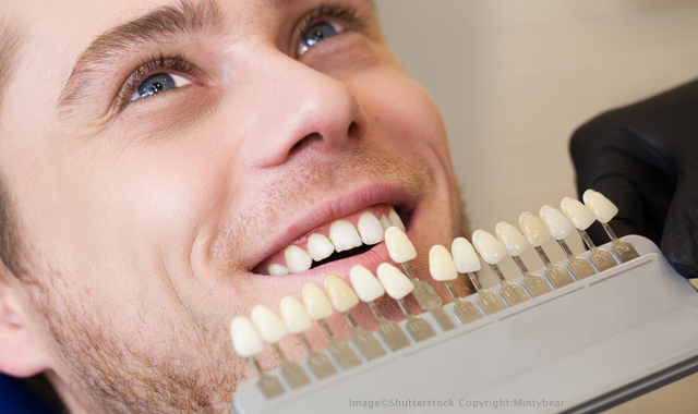 6 most common cosmetic dentistry mistakes — and how to avoid them | Dental  Products Report