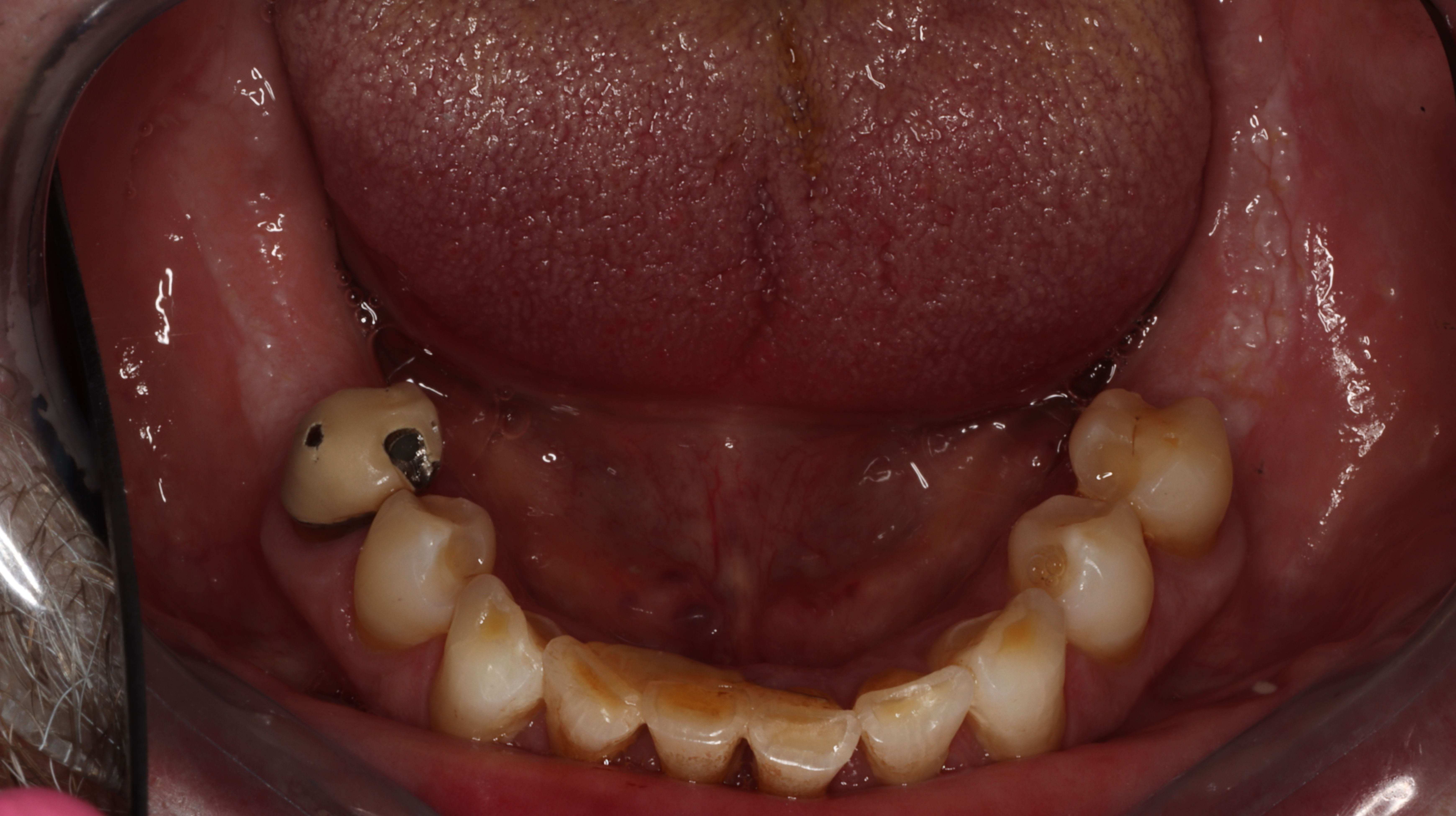 Figure 2. Occlusal view pre-op extraction of periodontally-involved mandibular incisors.