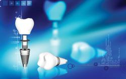 Clinicians Have Growing Need for Implant Experts
