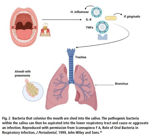 How bacteria moves from the oral cavity to the lungs