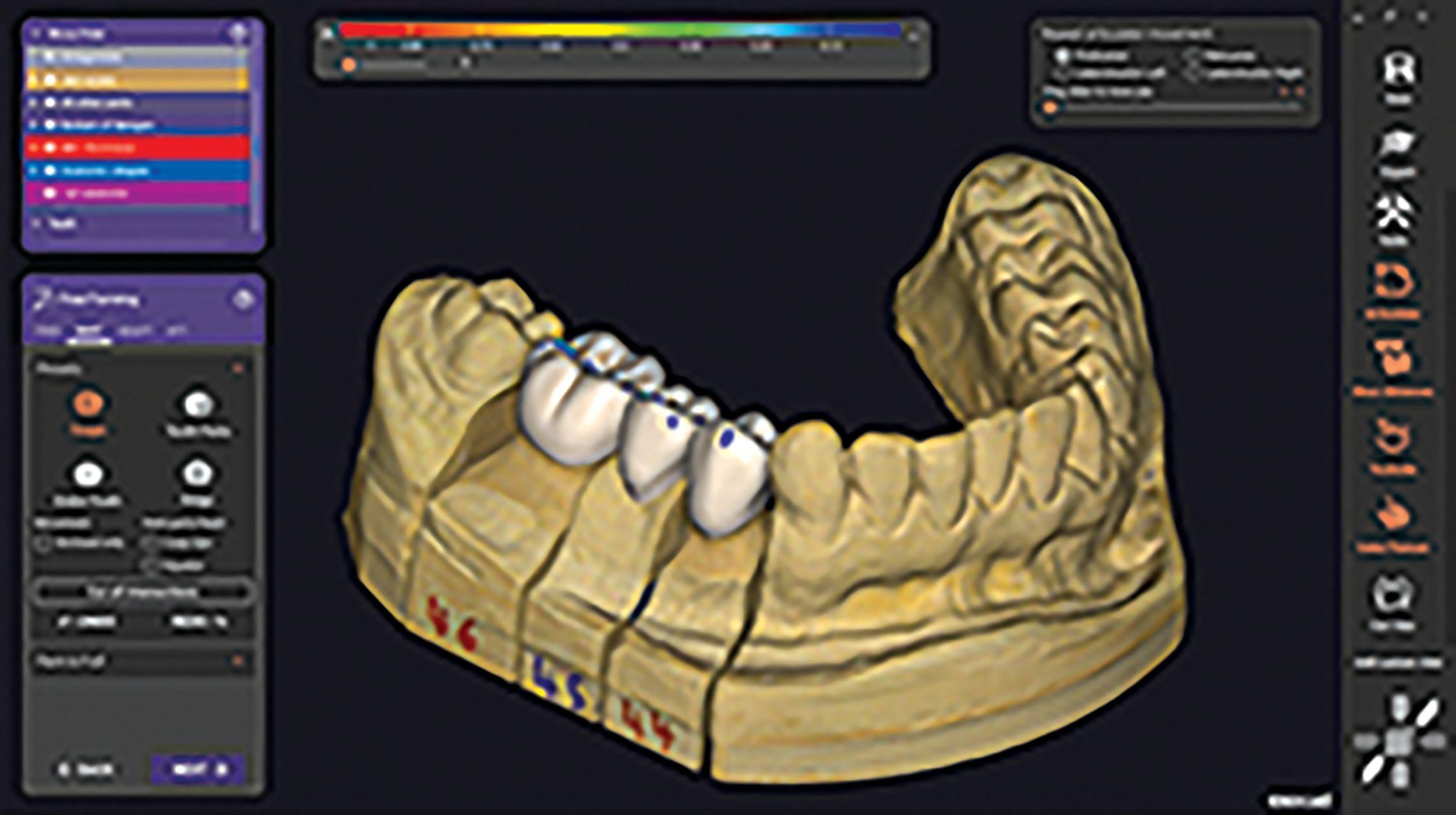 DentalCAD 3.0 Galway
