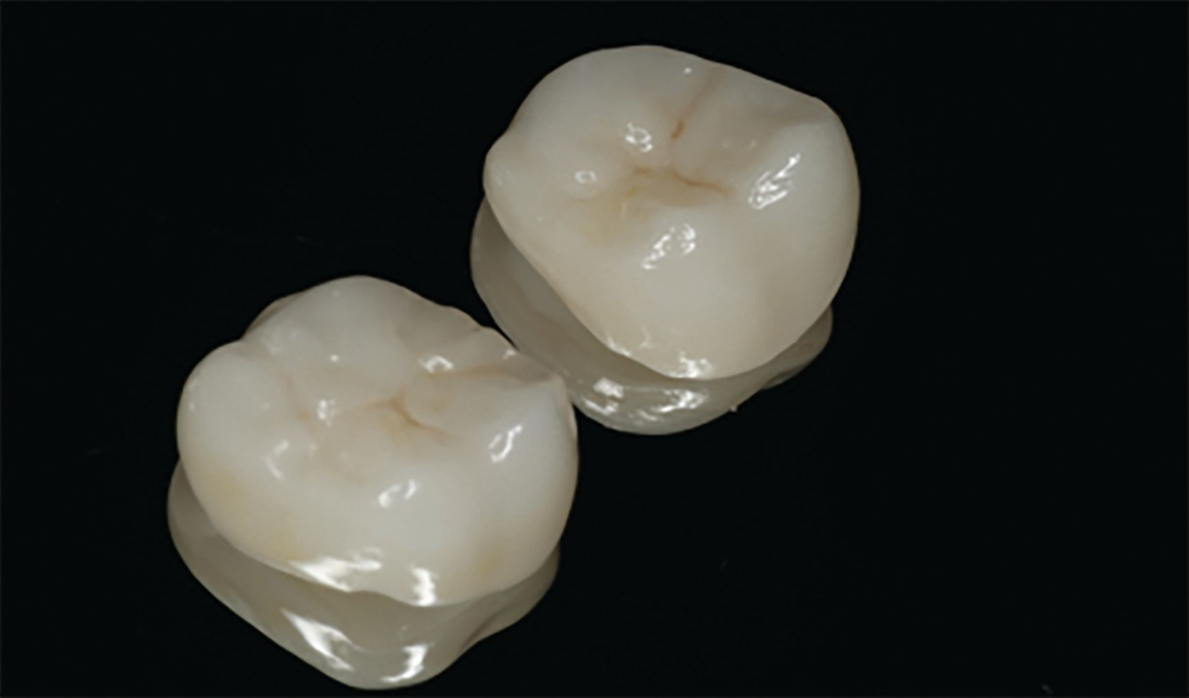 Catapult dental product review
