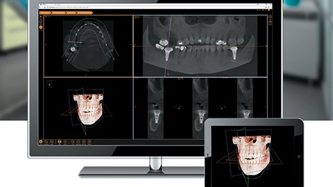 The reinvention of dental imaging software