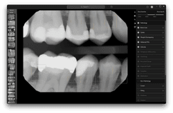Dental Artificial Intelligence Company Pearl Granted Patent for Radiology Technology