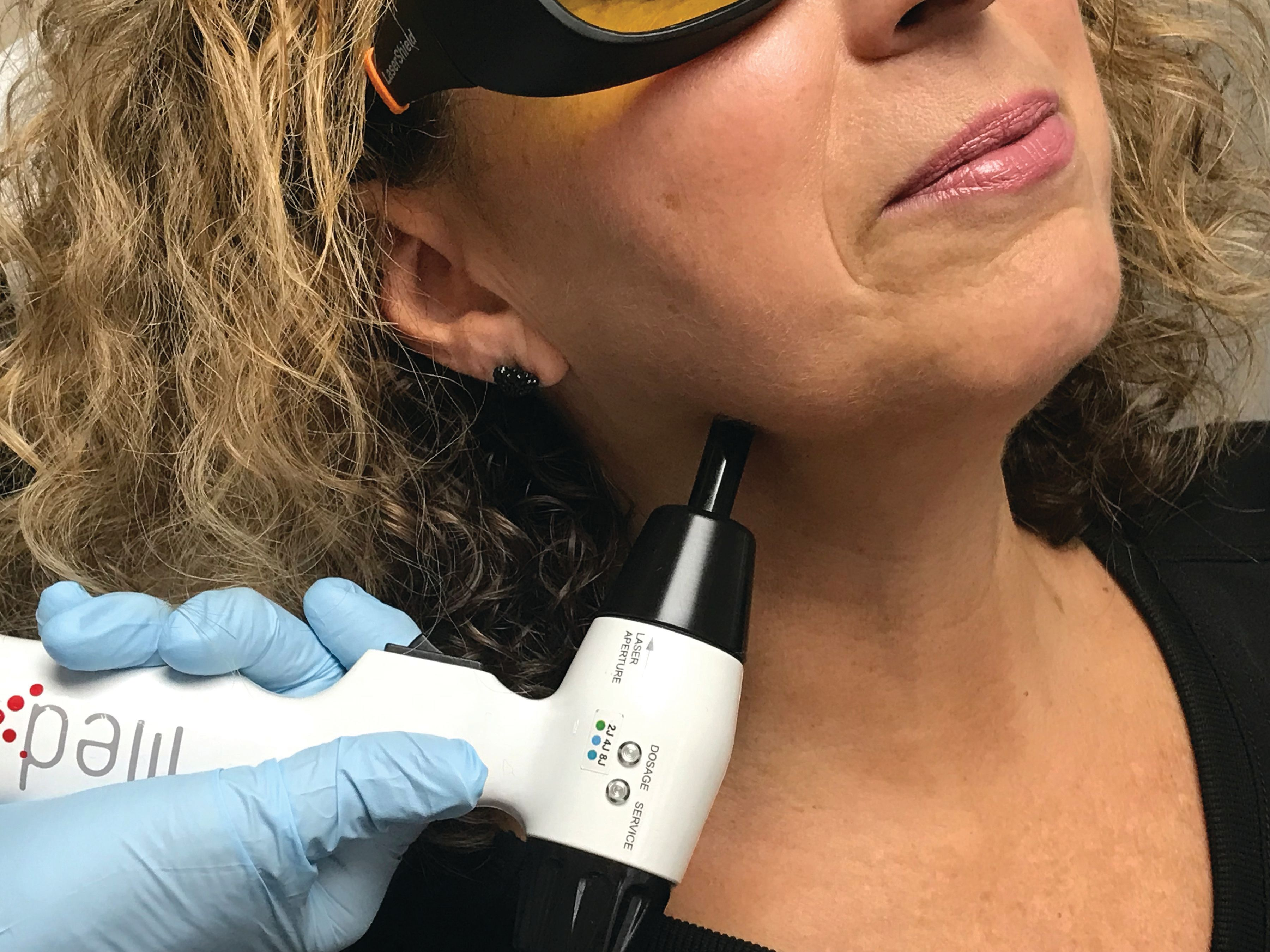 How to Treat Facial Pain With Photobiomodulation/Low-Level Laser Therapy