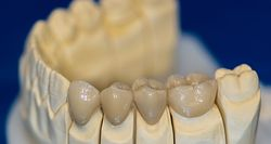 Material Options Help Digital Dentistry Excel