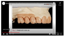 How to use IPS e.max for simpler restorations [VIDEO]