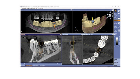A complete approach to implant planning