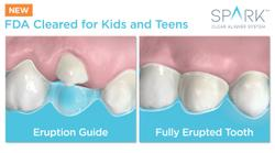 Spark Clear Aligner System Receives FDA Clearance for Younger Patients