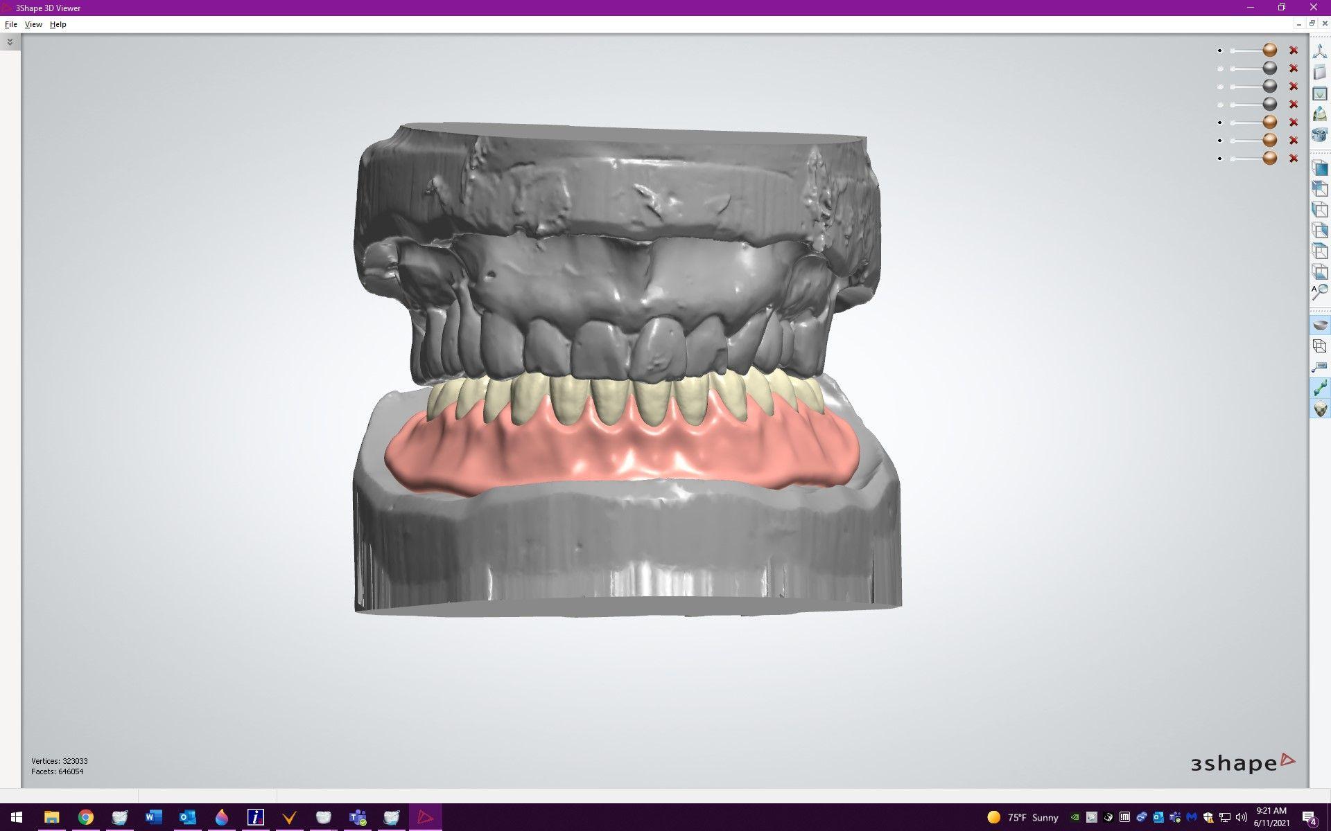 Figure 15. Digital setup for mandibular, cast bar reinforced, overdenture.