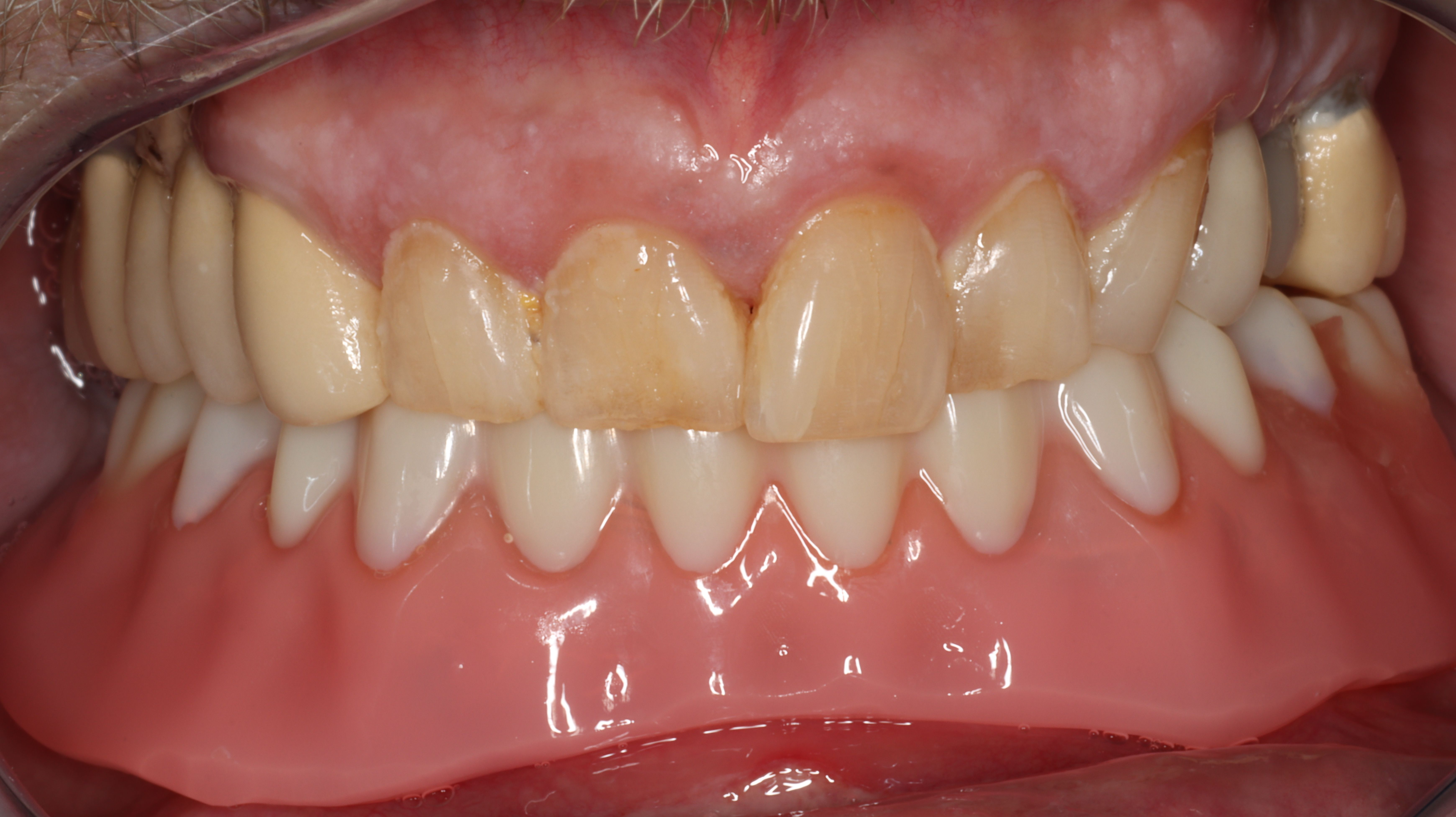 Figure 23. Denture seated, occlusion verified at the completion of surgery and restorative pickup of attachments.