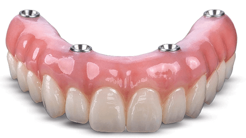 Solve My Problem: A great-looking dental implant prosthesis with plenty of strength