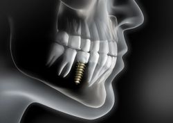 What Materials and Objects Were Used to Replace Missing Teeth Before the Invention of Dental Implants