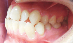 How to increase predictability for faster tooth movement