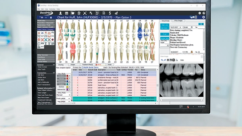 An all-in-one solution to streamline dentistry