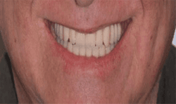 How to use new materials and workflows to restore edentulous patients