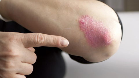 What Pharmacists Need to Know About Psoriasis Medications
