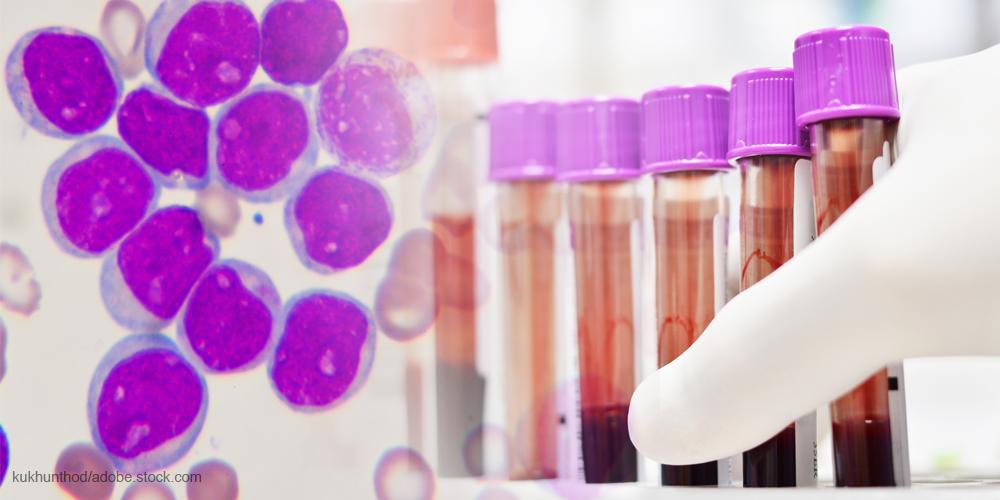 Leukemia blood and cells