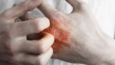 What Do Pharmacists Have to Do with Dermatology?