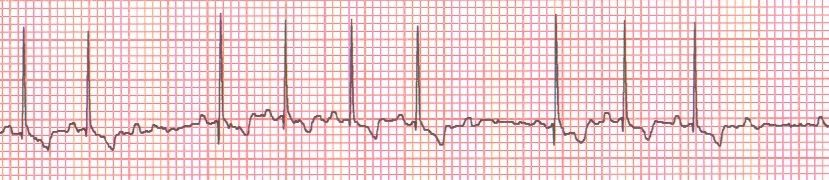 Reading Ecgs In Veterinary Patients An Introduction Dvm 360