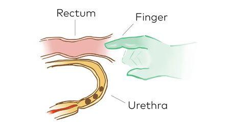 Finger urethra