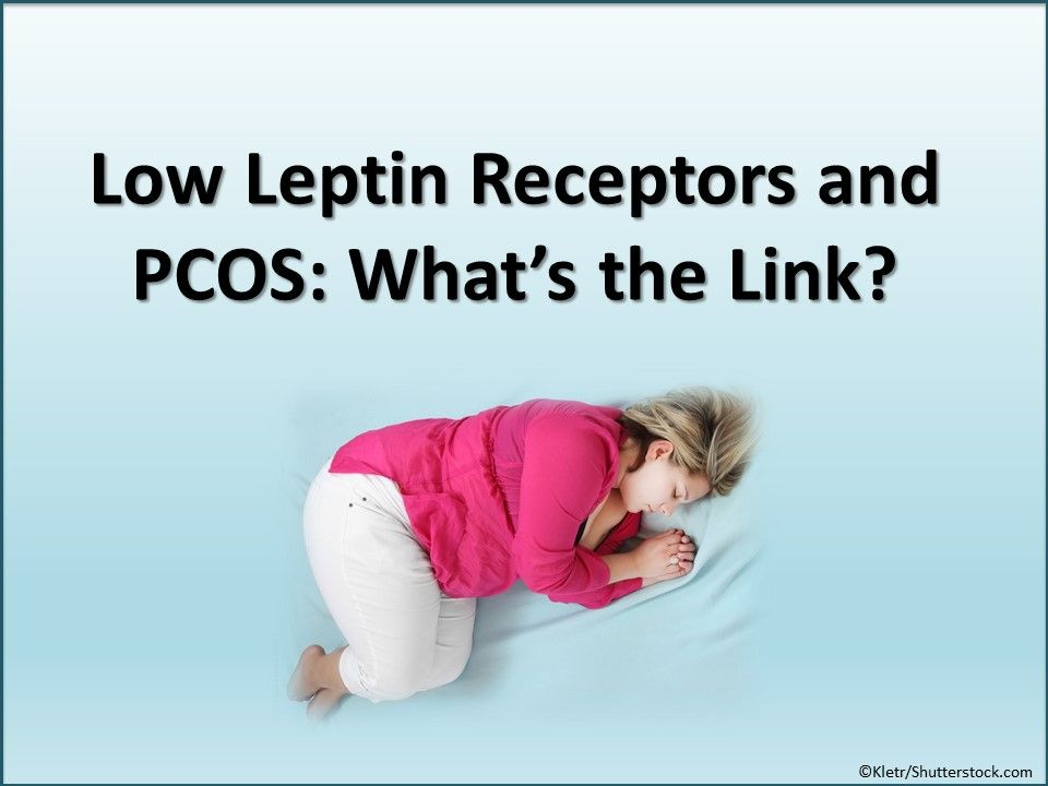 PCOS, polycystic ovary syndrome, obese women, leptin levels, endocrinology