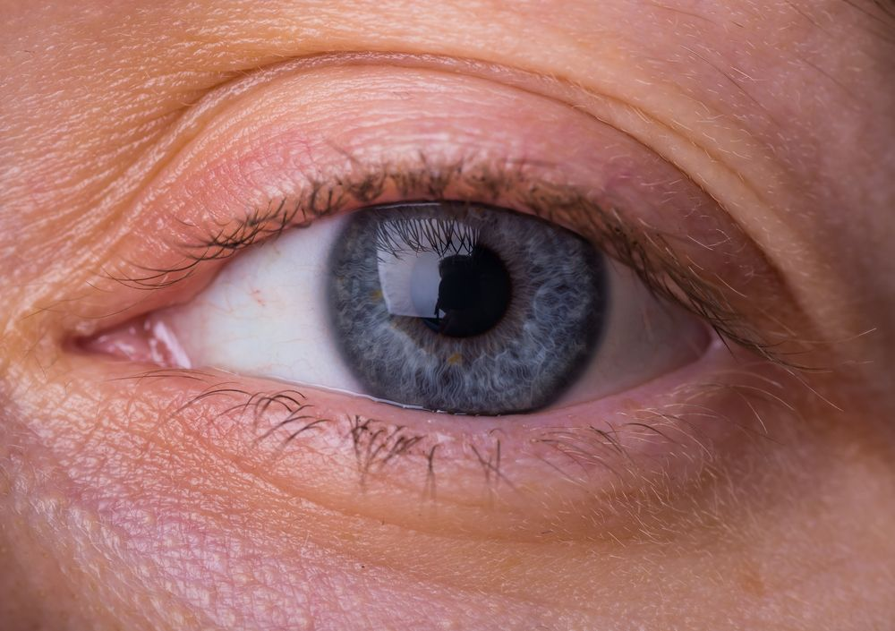 First Treatment For Thyroid Eye Disease Approved By Fda