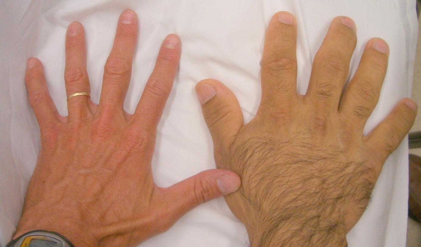 Hairy Hand Case