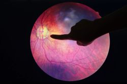 Implementing the Topcon Ocular Telehealth Platform for Diabetic Retinopathy Screening in Primary Care can Increase Number of Screenings for Diabetic Retinopathy