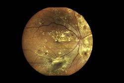 OpRegen Shows Sustained Efficacy in Treating Dry AMD