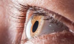 Cell Therapy a Promising Option in Corneal Endothelial Disease