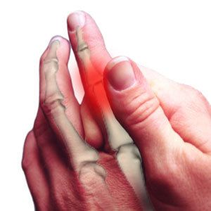 Nsaids The First Line Of Defense For Psoriatic Arthritis Hcplive