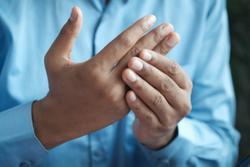 Comorbid Psoriatic Arthritis Generally Worsens Psoriasis Severity