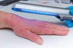 Medium-Dose Ultraviolet A1 Cold Light Preferred Atopic Dermatitis Treatment