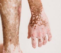 Sivastatin Effective in Patients with Vitiligo