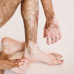 Delayed Vitiligo Treatment Potential Risk Factor for Progression, Recurrence