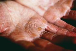 Laboratory Markers Aid in Evaluating Atopic Dermatitis