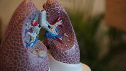 Omalizumab Allergic Asthma Benefit Dependent on Pathway Metrics